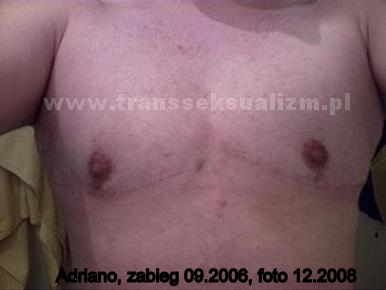 zawisz-adriano_2_lata_po_operacji_2_130_716